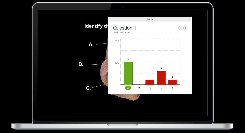 Screenshot iClicker Results Graded